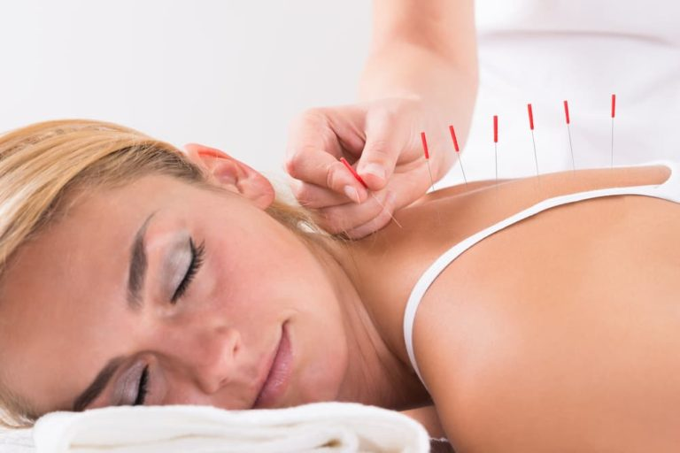 Dry Needling vs Acupuncture Differences